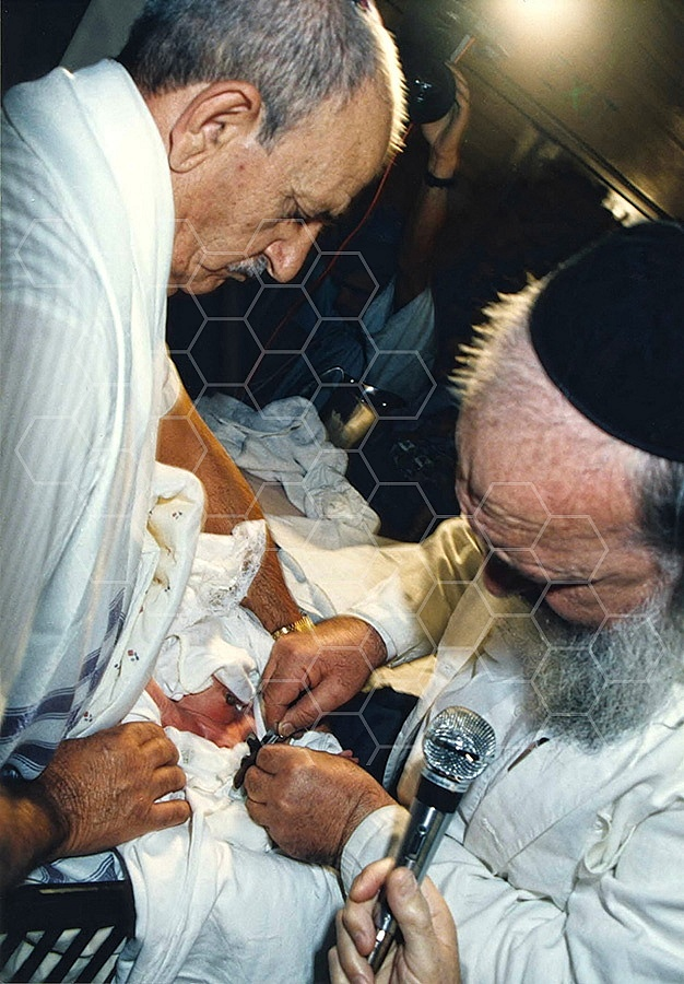 Circumcision 005